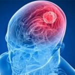 Интересное про опухоль головного мозга